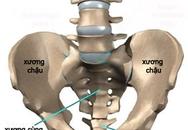 Tìm hiểu về bệnh lao xương khớp
