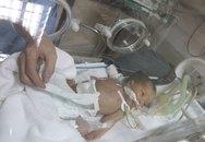 Đau đớn bé sơ sinh thoát vị rốn bị chối bỏ