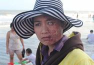 Lê Khánh bị biến dạng khuôn mặt?