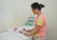 Phẫu thuật lấy khối u nặng 0,5kg ở vùng hậu môn bé sơ sinh