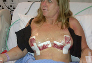 Ngực phát nổ vì bơm silicon nâng cấp vòng một
