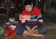 Chuyện đau lòng trong gia đình những đứa trẻ sinh ra đều mang hình hài của… khỉ