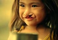 Bật khóc trước khát khao nụ cười của bé gái hở hàm ếch
