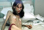 Cô gái 'không có ngực' vì ăn kiêng suốt 20 năm