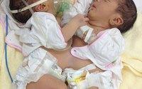 Bệnh viện Nhi Trung ương mổ tách thành công cặp song sinh dính liền bụng