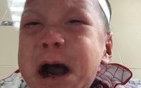 Căn bệnh của bé trai bị mẹ bỏ rơi diễn biến ngày càng tệ