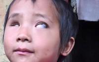 Đôi bắt bé gái mù Vừ Thị Dính đã căng phồng như sắp nổ