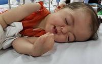 Xót xa bé 3 tuổi bị dính liền ngón chân, ngón tay