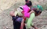 Bộ trưởng Y tế yêu cầu cứu chữa gấp cho bé gái có khối u dị thường