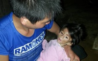 Hoàn cảnh thương tâm của bé gái 14 tháng tuổi, chỉ nặng 3,5kg