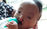 Xót thương cháu bé 10 tháng tuổi mắc 3 bệnh hiểm nghèo