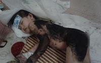 Trào nước mắt cơn đau của bé gái 3 tuổi vì một lần bất cẩn của mẹ