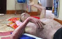Ba bác cháu bỏng nặng không có tiền chữa trị do ngửi mùi khí lạ