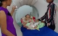 Lọt vào căm (nan hoa) xe máy, bé 11 tháng tuổi nguy kịch
