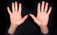 Tự xem số phận qua bàn tay: Tai họa, bệnh tật trong lòng bàn tay