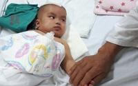 Cháu bé bị chấn thương sọ não do ngã võng chưa thể ngóc được cổ lên