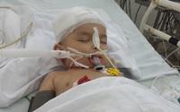 Bị tivi rơi trúng đầu, bé 3 tuổi sự sống mong manh