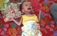 Xót xa bé trai 1 tuổi vật lộn cùng khối u não