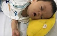 Xót lòng bé trai gần 10 tháng tuổi các ngón tay chân dính liền nhau