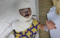 Nghẹn lòng trước khuôn mặt bé 9 tháng tuổi biến dạng vì ngã vào bếp lửa