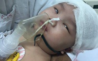 Bé gái hơn 6 tháng tuổi chấn thương sọ não do ngã võng