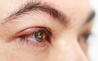 Cần làm gì khi mắt bị dị ứng?