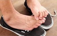 Bàn chân có mùi hôi, chữa cách nào?