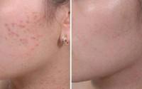 Quy trình chuẩn trị mụn ẩn dưới da tại nhà siêu hiệu quả