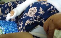 Nỗi đau của người vợ thoát chết sau khi bị chồng tra tấn như thời trung cổ ở Ninh Bình