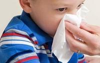 Trẻ bị chảy máu cam: Tại sao không cho con ngả đầu về phía sau?