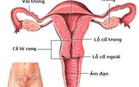 8 dấu hiệu lạ cảnh báo bạn bị ung thư cổ tử cung