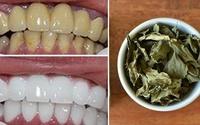 Không cần bọc răng sứ, đây mới là cách làm trắng răng hiệu quả và an toàn nhất