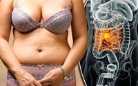 Mỡ tích ở vùng này có thể tăng nguy cơ 10 loại ung thư: Bạn có nguy cơ không?
