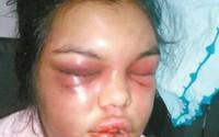Chồng đánh vợ biến dạng mặt vì bạn bè 'like' ảnh trên Facebook