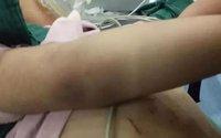 Bé gái 3 tuổi nhập viện với thương tích đầy mình và tội ác của người mẹ kế khiến dư luận phẫn nộ