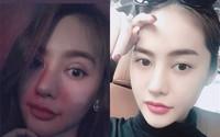 Mũi cao môi tều chưa đủ, Linh Chi quyết thay đổi nhan sắc hoàn toàn bằng đôi mắt 2 mí dày cộp
