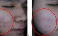 Mách bạn 3 cách trị sẹo, vết thâm mụn đơn giản hiệu quả hơn mỹ phẩm tiền triệu