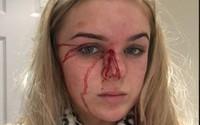 Cô gái 19 tuổi cố gắng thoát thân sau khi bị bạn trai lột sạch quần áo và đánh đập tàn nhẫn