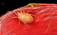 Soi thật kỹ dưới kính hiển vi, bạn sẽ không thể ngờ đây là những đồ ăn mình vẫn đưa vào miệng hàng ngày
