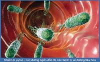 Vi khuẩn HP gây ung thư dạ dày có trên mâm cơm