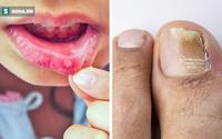 8 tác dụng phụ của kháng sinh mà ngay cả bác sĩ cũng không thường xuyên nói cho bạn biết