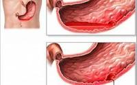 Cảnh báo chảy máu dạ dày bởi món ăn vặt phổ biến mùa lạnh