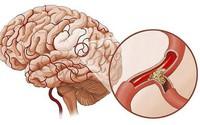 Phòng ngừa thiếu máu não