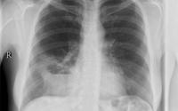 Ho, khạc kéo dài, nữ bệnh nhân bỗng phát hiện bất thường hiếm gặp ở phổi