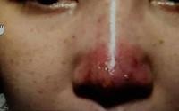 Thêm ca hoại tử mũi vì tiêm chất làm đầy, cảnh báo chị em không nên ham làm đẹp khi chưa làm điều này