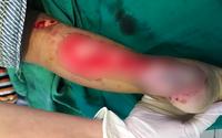 Thương tâm cảnh bé 2 tuổi đứt gân, lộ xương gót chân vì kẹt vào nan xe máy