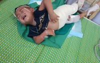 Ngã vào nồi măng, bé 2 tuổi bị bỏng toàn thân