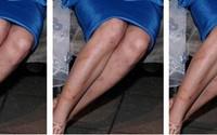 Cách trị sẹo thâm ở chân bằng nguyên liệu từ thiên nhiên