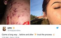 Chỉ với trà xanh và mặt ong, cô gái trẻ này đã chữa khỏi làn da bị mụn trứng cá viêm của mình