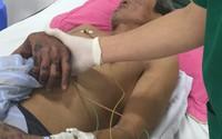 Ám ảnh vết loang tím đỏ trên da bị hoạị tử của bệnh nhân vào viện vì ăn thịt lợn